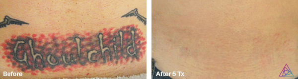 before laser tattoo removal and after